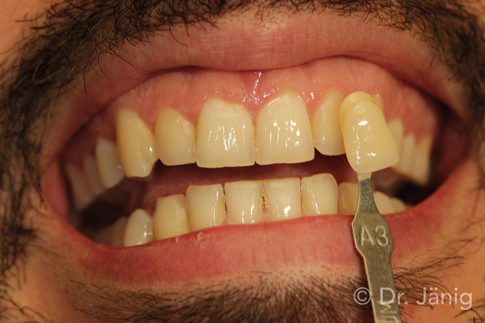 Fig.3_Determination of tooth shade_©Dr. Jänig